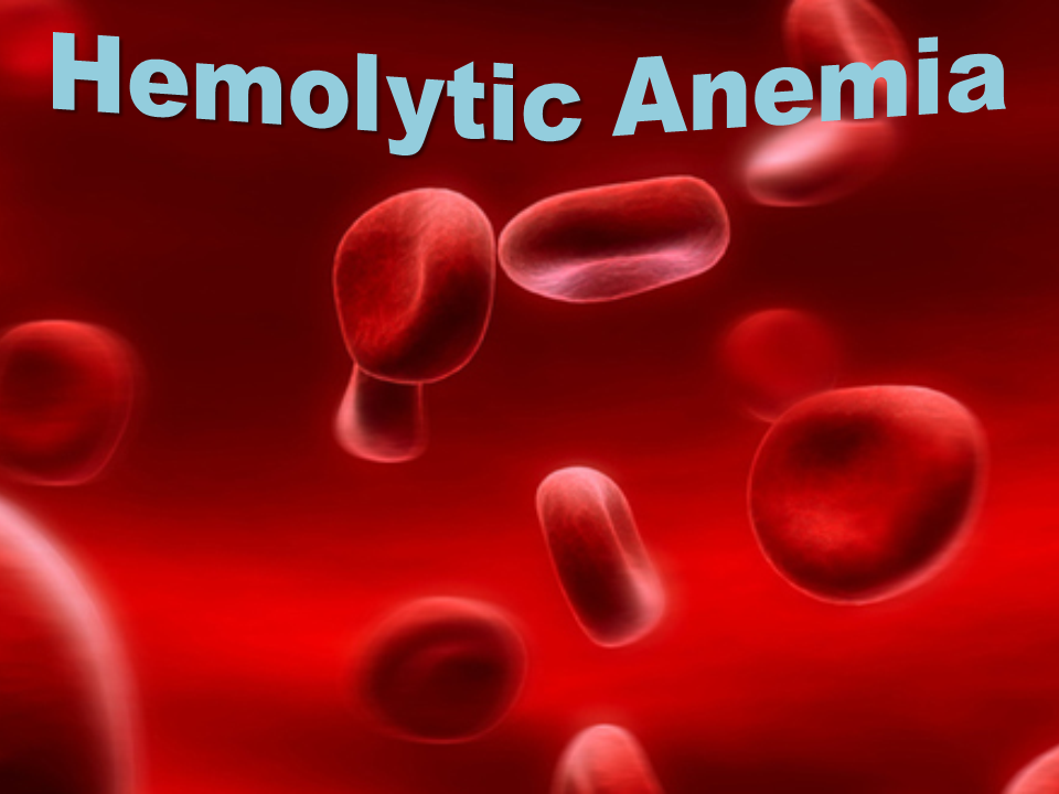 hemolytic anemia - thinglink, Skeleton