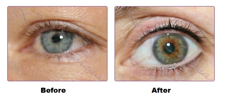 Ruth Swissa Permanent Makeup and Skin - Permanent Eyeliner